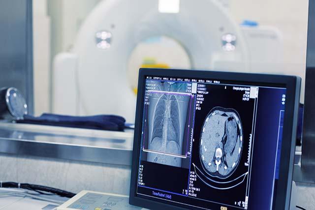 medical-imaging-storage-petabyte-object-storage-solution[1]